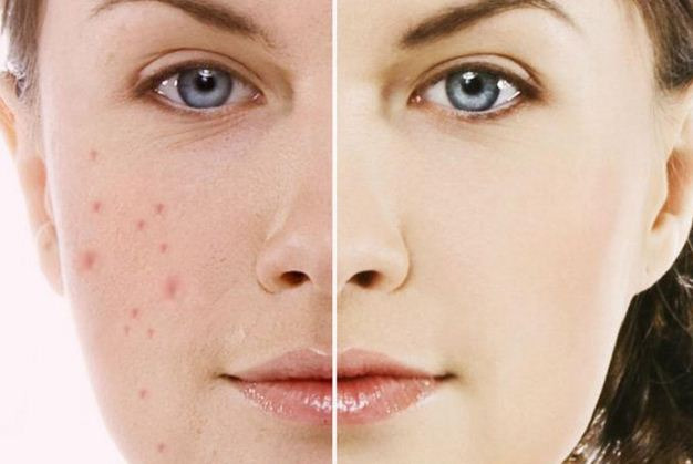 Lấy nhân mụn y khoa - Get acne according to medical standards