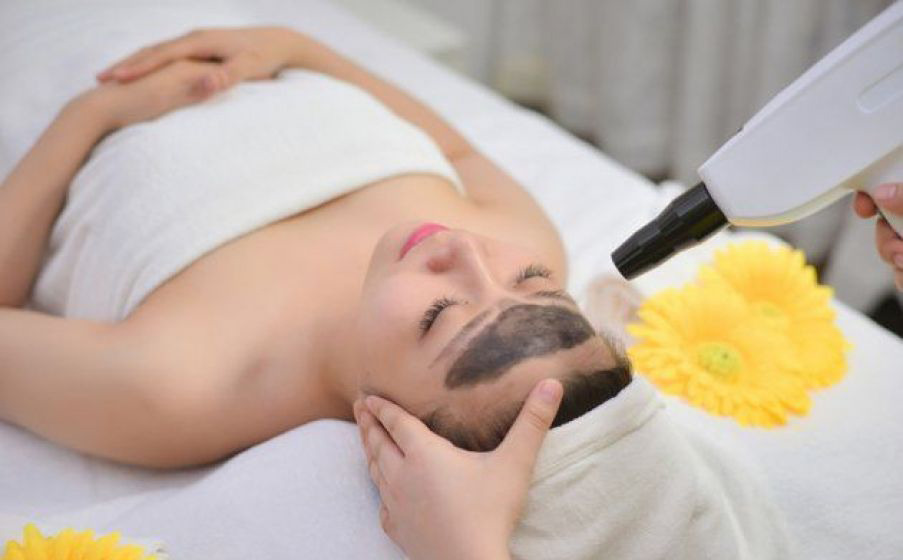 Laser Carbon Se Khít Lỗ Chân Lông - Laser Carbon for Pores Tightening